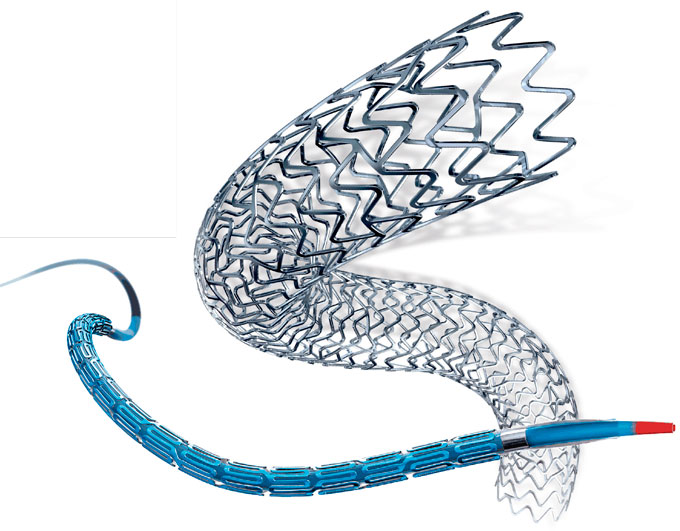 A Stent in Time